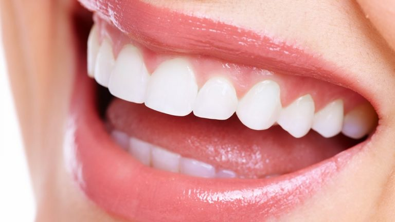 Check out the Different Ways to Straighten Your Teeth without Braces