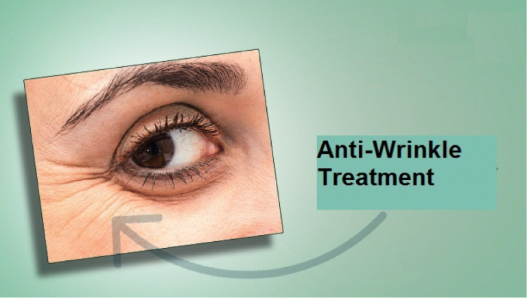 Get Anti-Wrinkle Treatment to Maintain a Youthful Look
