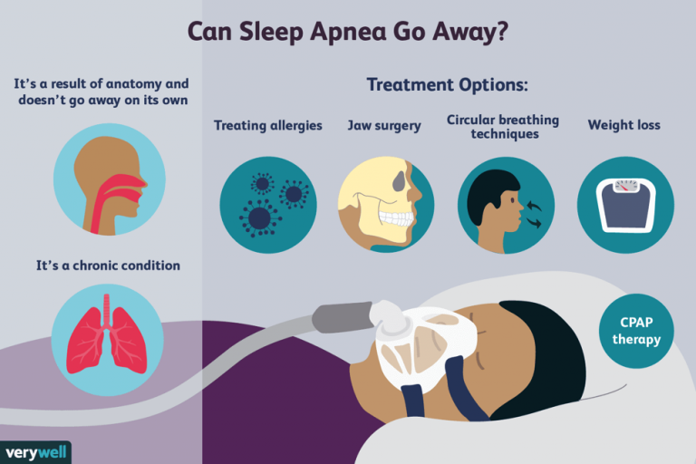A Quick Guide to Sleep Apnea and its Types