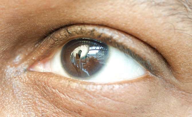 Dry Eyes Syndrome